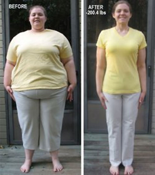 Amazing Weight Loss – 1Funny.com